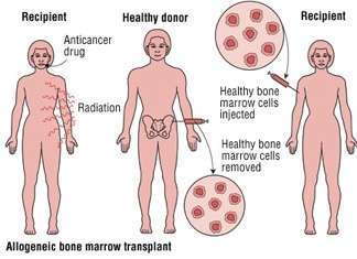 Allogeneic Bone Marrow Transplant